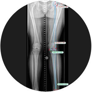 Achskorrektur Planung Korrektur Fehlstellung Othopädie X-Beine O-Beine