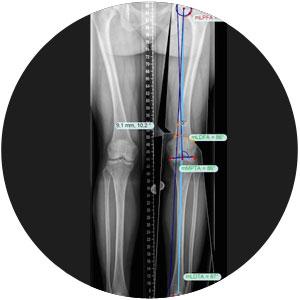 Achskorrektur Simulation Korrektur Fehlstellung Othopädie X-Beine O-Beine
