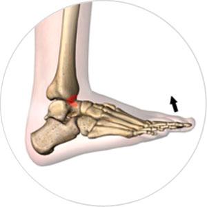Sprunggelenk ankle anterior-impingement orthopadie
