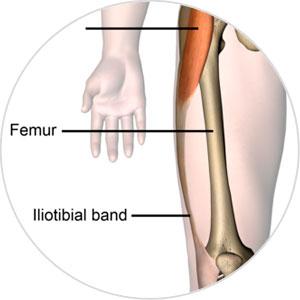 Femur Femurdefekt Oberschenkel Orthopädie