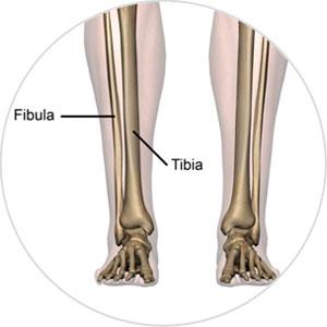 Tibia Orthopadie Fibula Tibia Orthopaedie