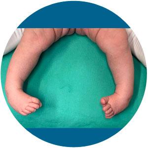 Klumpfuß Kinderfuß Neugeborenes Baby Füße Fehlstellung