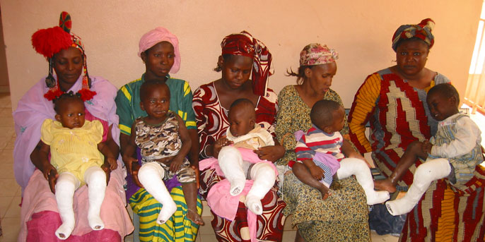Klumpfuss Projekt Mali Orthopädie