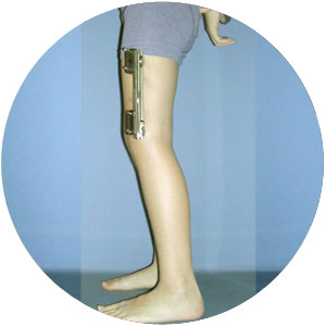 Seitlicher Fixateur Orthopädie Seite